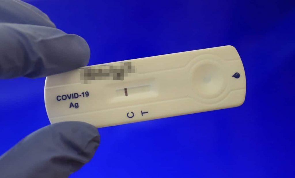 Бързите антигенни тестове се добавят като възможност за лабораторна диагностика на COVID-19